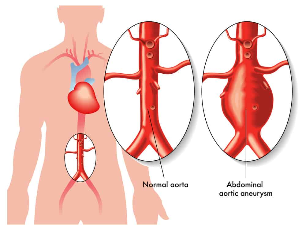 abdominal aortic aneurysm aaa post surgery care This care plan focuses on the adult client hospitalized for surgical repair of an abdominal aortic aneurysm much of the postoperative information is applicable to clients receiving follow-up care in an extended care facility or home setting.