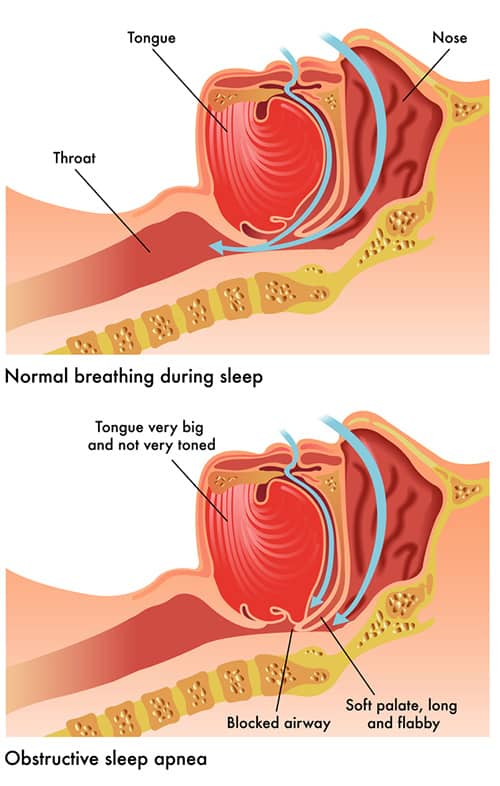 Fighting The Battle Against Obstructive Sleep Apnea - The
